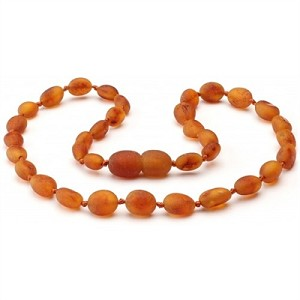 "The Amber Monkey 10-11"" Necklace"
