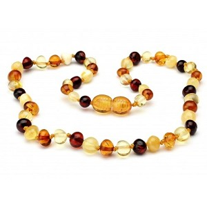 "The Amber Monkey 12-13"" Necklace"